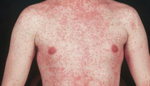 Measles Rash-photo