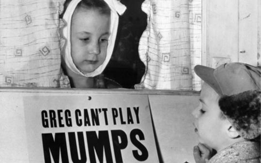 Permalink to Mumps Making the Rounds…In the Vaccinated…Again